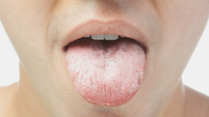 thick coated tongue